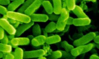 Arke (Archea) Bakteri