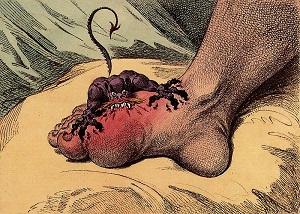 James Gillray tarafından Gut hastalığı için 1799 yılında çizilmiş bir karikatür
