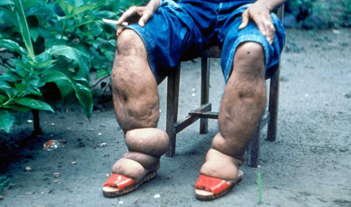 Fil Hastalığı Nedir? Neden Olur? Belirtileri ve Tedavisi
