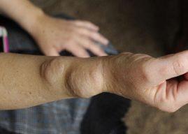 Dercum Hastalığı (Adiposis Dolorosa) Nedir? Belirtileri Nedenleri ve Tedavisi