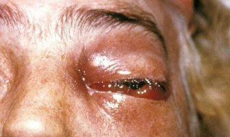 Kara Mantar Hastalığı