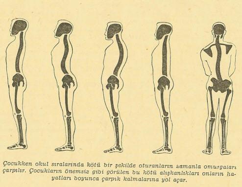 Omurga Hastalıkları