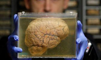 kavanozda beyin