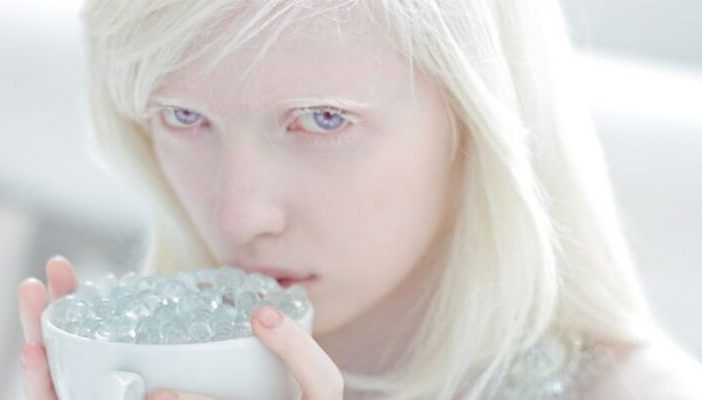 albinizmin tanısı ile ilgili görsel sonucu