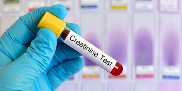 Kreatinin Testi