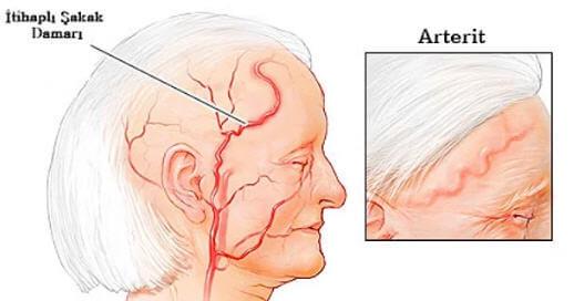 Arterit