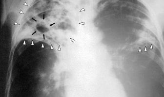 Tuberkuloz
