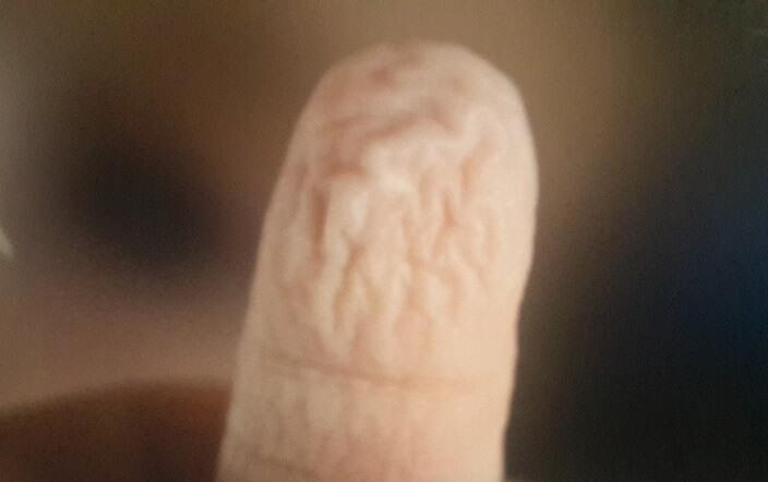 Buruşmuş Parmak
