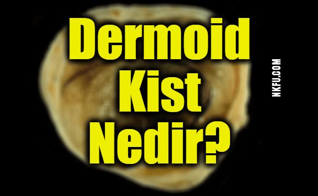 Dermoid Kist Nedir? Dermoid Kistler Hakkında Bilmeniz Gerekenler