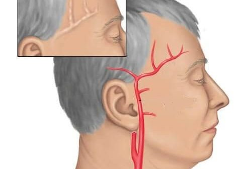 temporal arterit