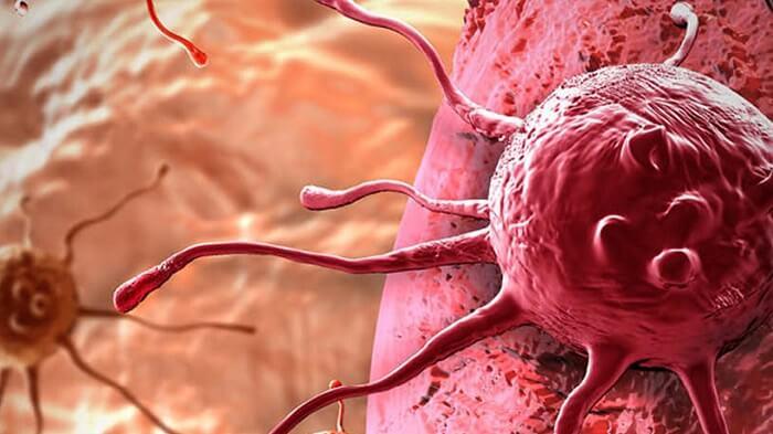 Lenf Kanseri Nedir? Lenf Kanseri Belirtileri ve Ölüm Oranları Nelerdir?