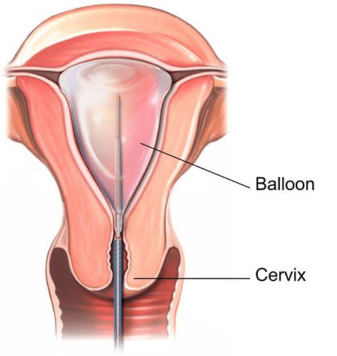 Endometrial Ablasyon