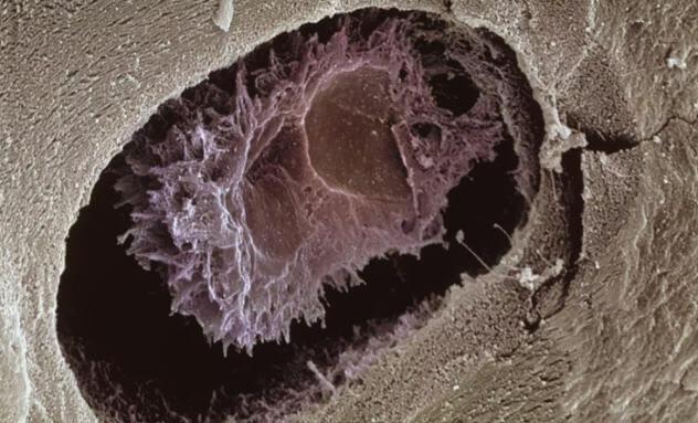 kemik hücresi