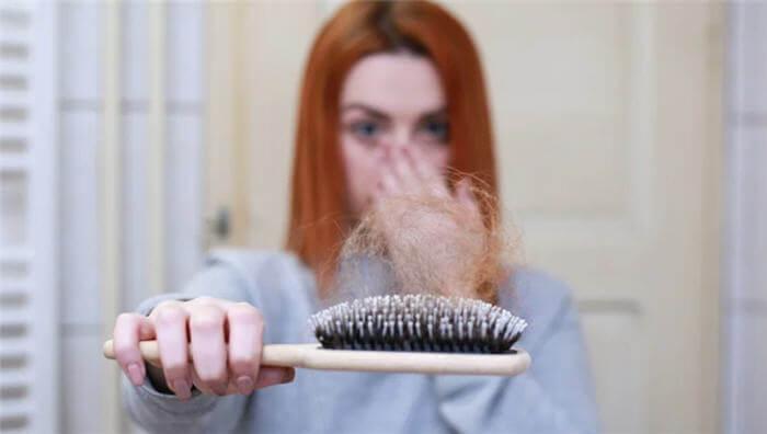 Saç Dökülmesi Sebepleri Nelerdir? Tedavisi Nasıl Yapılır?