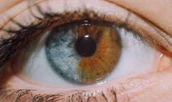 iki renkli göz